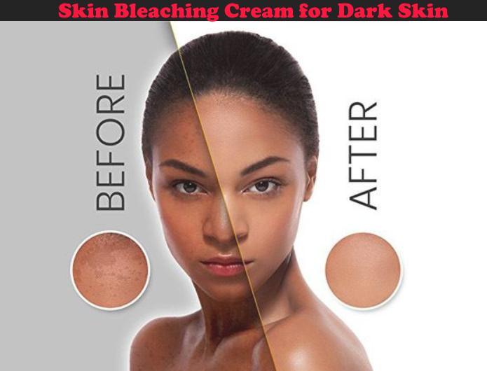 The Best Skin Bleaching Cream for Dark Skin
