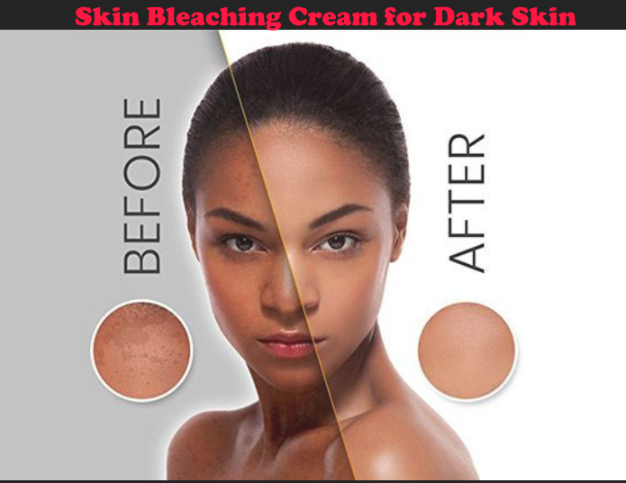 Skin Bleaching Cream for Dark Skin
